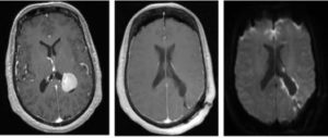 Pre- and post-operative MRI of 63-year-old patient