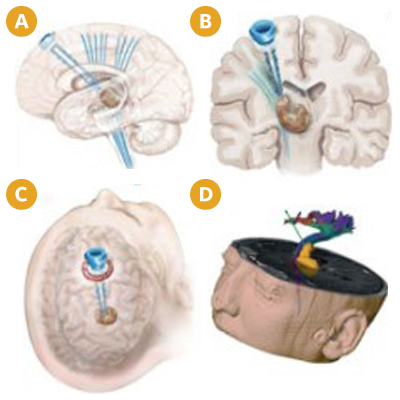 Nico BrainPath can result in less trauma to the patient and shorter recovery times.
