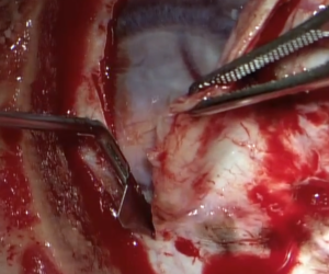 meniGLIDE in surgery