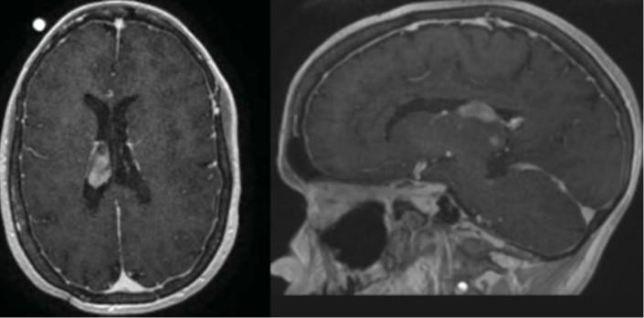 10000 Brain Biopsies Performed