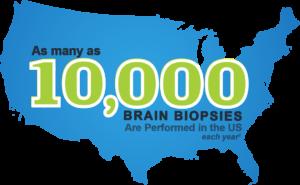 NICO Brain Biopsies using the BrainPath Approach