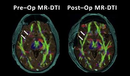 economic outcomes of tumor and brain biopsy NICO
